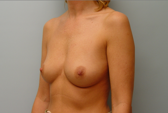 Breast Implants: 40-Year-Old Female 1034605