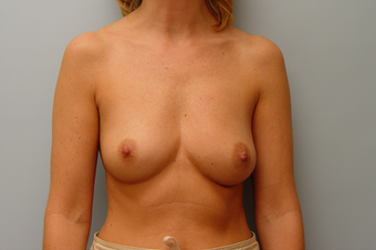 Breast Implants: 40-Year-Old Female before 1034605