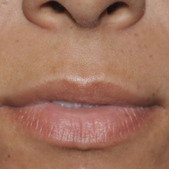 25-34 year old woman treated with Lip Lift before 1950356
