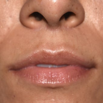 25-34 year old woman treated with Lip Lift after 1950356