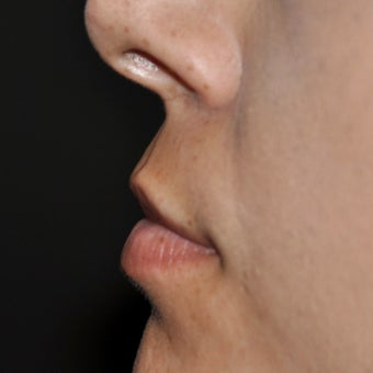 25-34 year old woman treated with Lip Lift 1950356