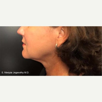 Kybella Injections for Melting Neck Fat after 2202011
