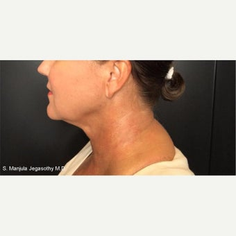 Kybella Injections for Melting Neck Fat before 2202011