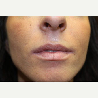 25-34 year old woman treated with Lip Augmentation before 3686693