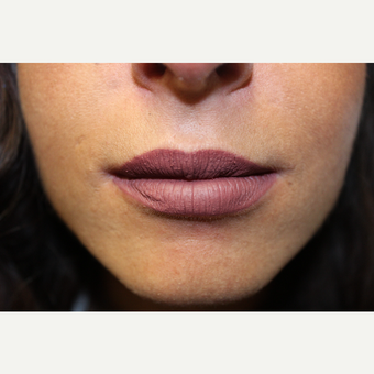 25-34 year old woman treated with Lip Augmentation after 3686693
