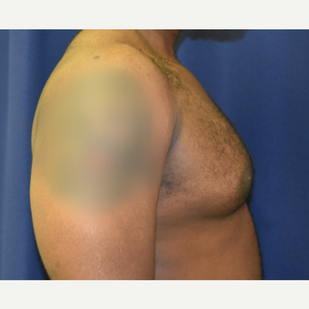 25-34 year old man treated with Male Breast Reduction before 3788375
