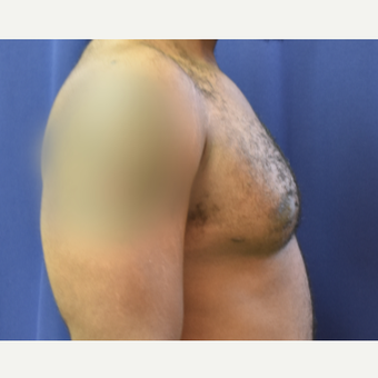 25-34 year old man treated with Male Breast Reduction after 3788375