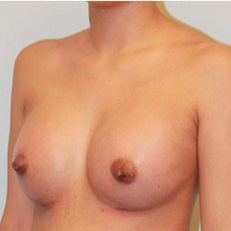 Breast Augmentation after 2139568