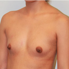 Breast Augmentation before 2139568