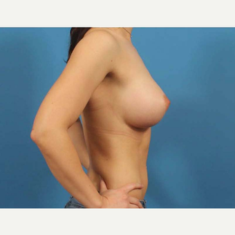 25-34 year old woman treated with Breast Implants after 3787022