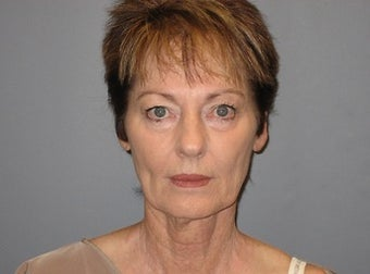 66 Year Old Seeks Minifacelift and Eyelid Lift