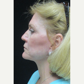55-64 year old woman treated with Facelift after 3088493