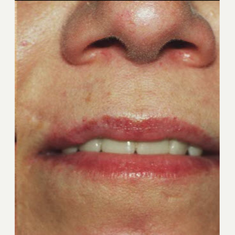 45-54 year old woman treated with Scar Removal after 3725571