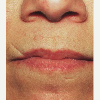 45-54 year old woman treated with Scar Removal before 3725571