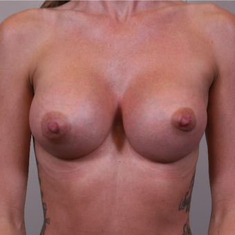 25-34 year old woman treated with Breast Augmentation after 3141960