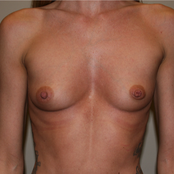 25-34 year old woman treated with Breast Augmentation before 3141960