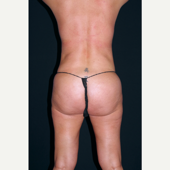25-34 year old woman treated with Liposuction after 3055026