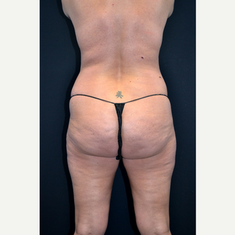 25-34 year old woman treated with Liposuction before 3055026