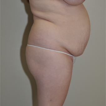 25-34 year old woman treated with Tummy Tuck before 3000352