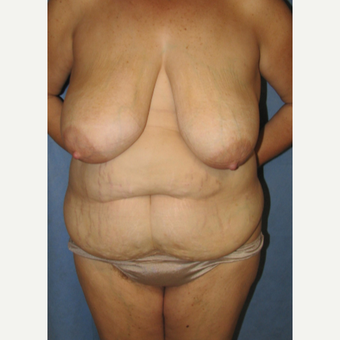45-54 year old woman treated with Mommy Makeover before 3180527