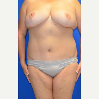45-54 year old woman treated with Mommy Makeover after 3180527