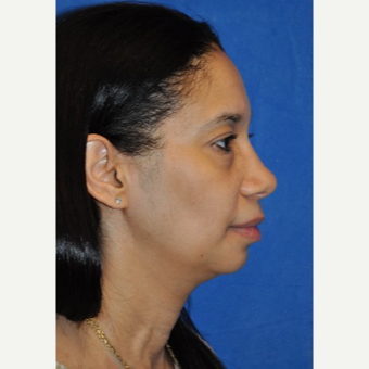 35-44 year old woman treated with African American Rhinoplasty after 3245973