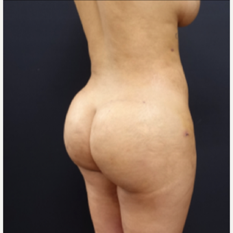 25-34 year old woman treated with Liposculpture after 3267097