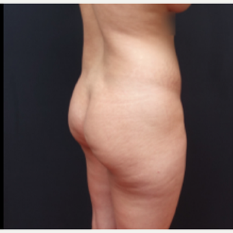25-34 year old woman treated with Liposculpture before 3267097