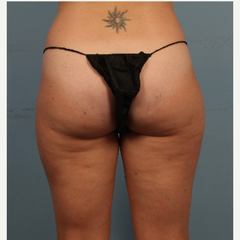Cellfina Cellulite Treatment - Female after 3070667