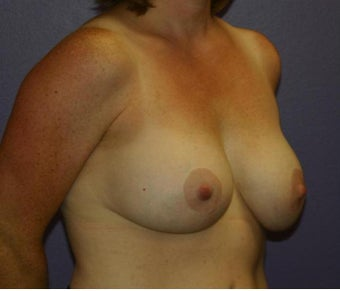 Breast Implant Removal with Lift before 1215861