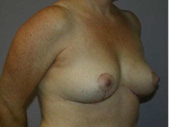 Breast Implant Removal with Lift after 1215861