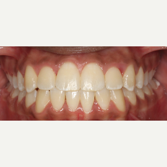 17 or under year old man treated with Braces after 3188472