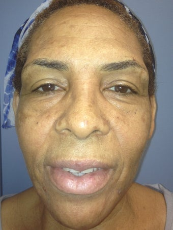 female treated for wrinkles before 1230765