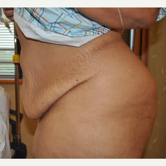 35-44 year old woman treated with Tummy Tuck before 3603298