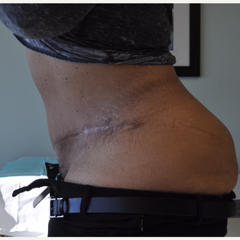 35-44 year old woman treated with Tummy Tuck after 3603298