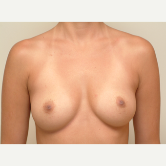 18-24 year old woman treated with Breast Implants before 3741957