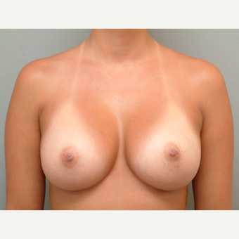 18-24 year old woman treated with Breast Implants after 3741957