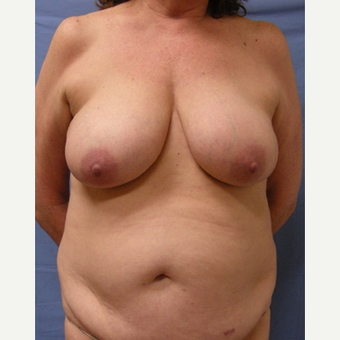 55-64 year old woman treated with Breast Reconstruction before 3644551