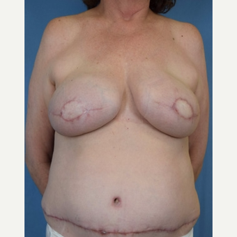 55-64 year old woman treated with Breast Reconstruction after 3644551