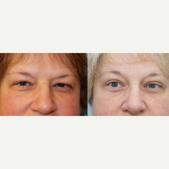 56 yr old Female - Eyelid Surgery before 3099773