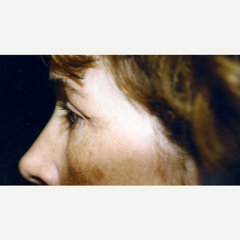 45-54 year old woman treated with Eyelid Surgery after 3236424