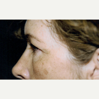 45-54 year old woman treated with Eyelid Surgery before 3236424