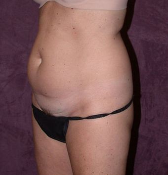 Tummy tuck (abdominoplasty) with liposuction of hips before 94647