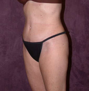 Tummy tuck (abdominoplasty) with liposuction of hips after 94647