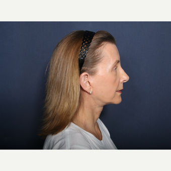 55-64 year old woman treated with Neck Lift (view 2 of 2) after 3226126