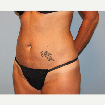35-44 year old woman treated with Tummy Tuck before 3815705