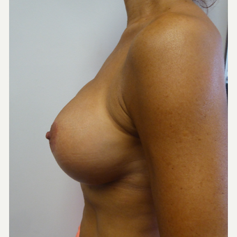 45-54 year old woman treated with Breast Implant Revision after 3428421