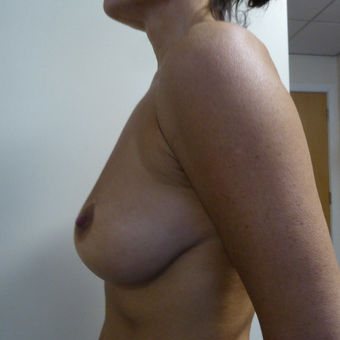 45-54 year old woman treated with Breast Implant Revision before 3428421