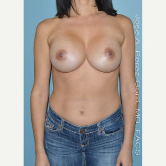 35-44 year old woman treated with Breast Implant Revision for recurrent Class IV Capsule Contracture after 1644127