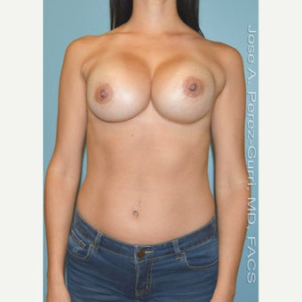 35-44 year old woman treated with Breast Implant Revision for recurrent Class IV Capsule Contracture before 1644127